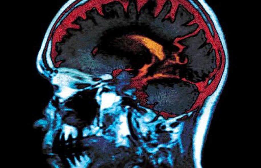 «Les neurosciences vont certes faire progresser nos connaissances concernant les troubles d'apprentissage, mais on n'en est pas encore là», déclare Julien Mercier, chercheur en sciences cognitives et directeur du NeuroLab de l'UQAM.