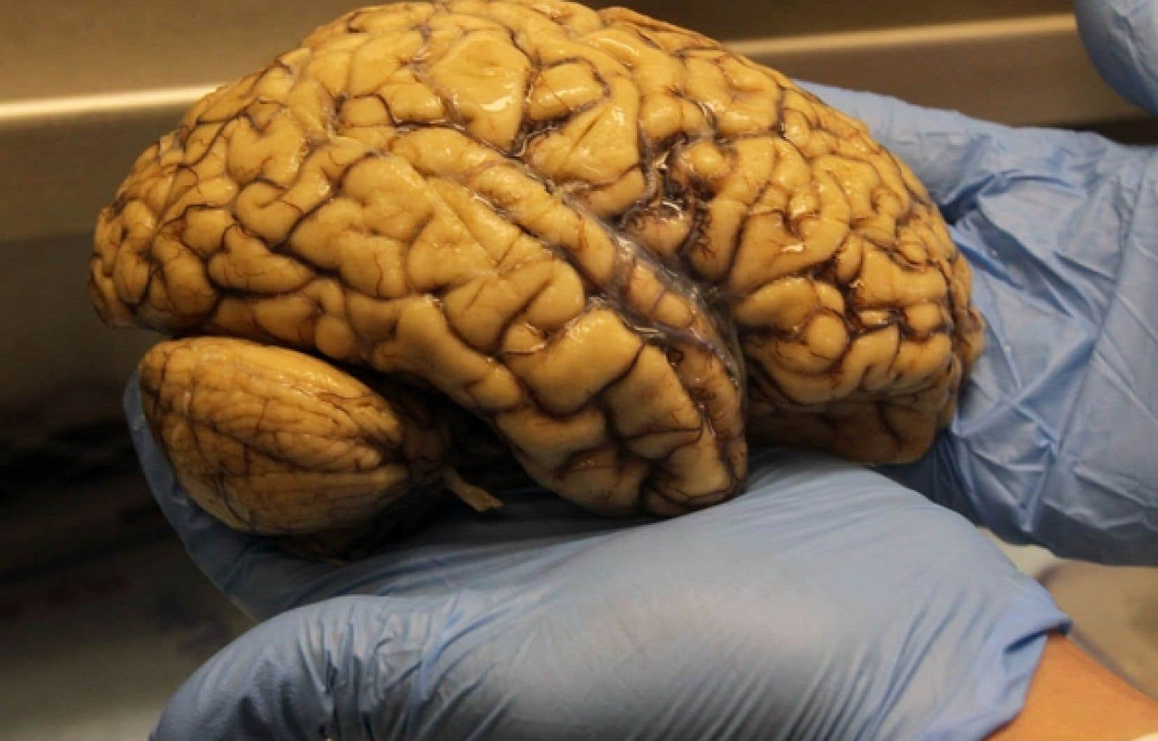 La banque de cerveaux de l'Institut Douglas compte actuellement plus de 3000 spécimens.<br />