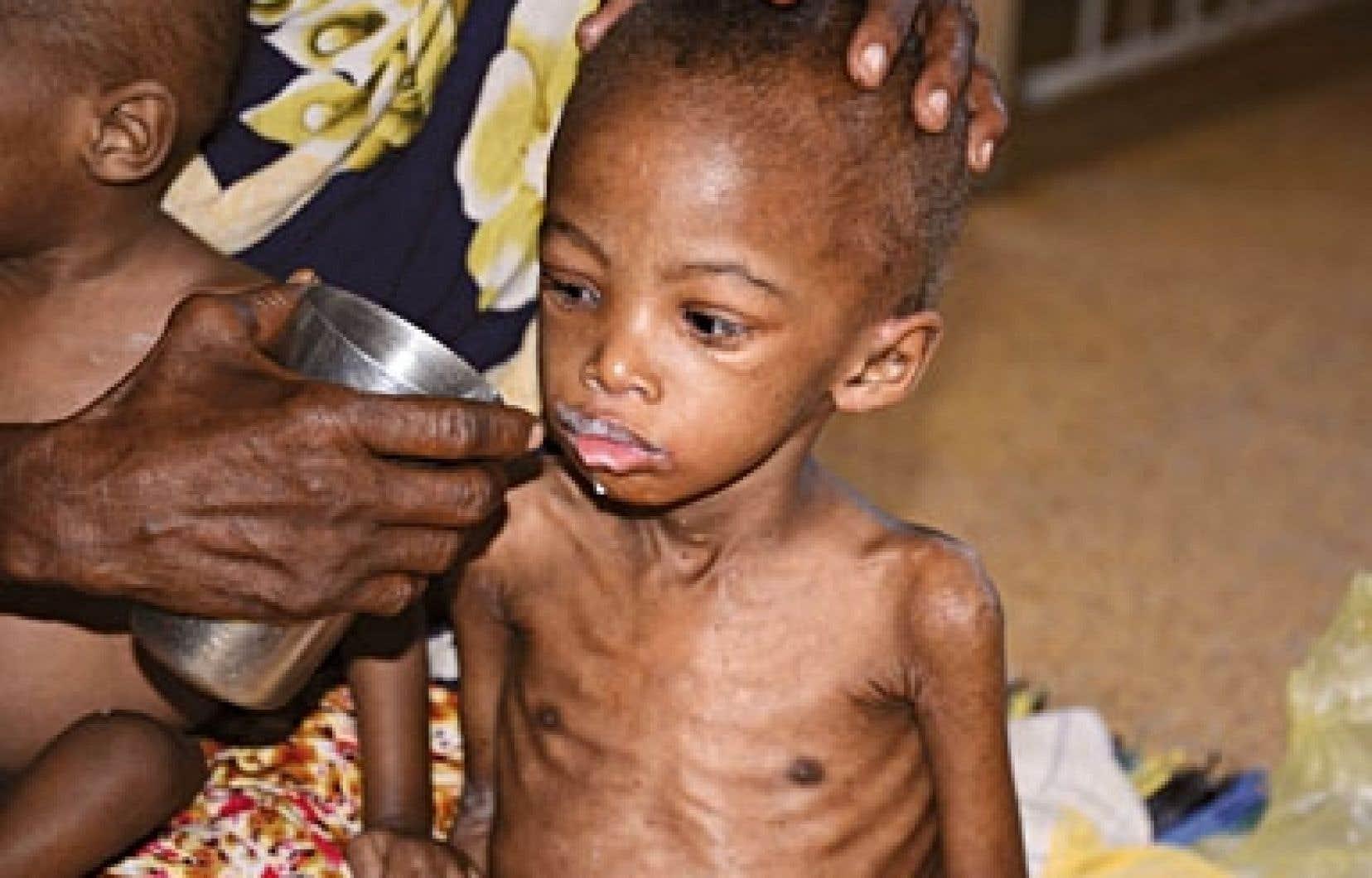 Un jeune Somalien a reçu des soins pour malnutrition à l'hôpital.