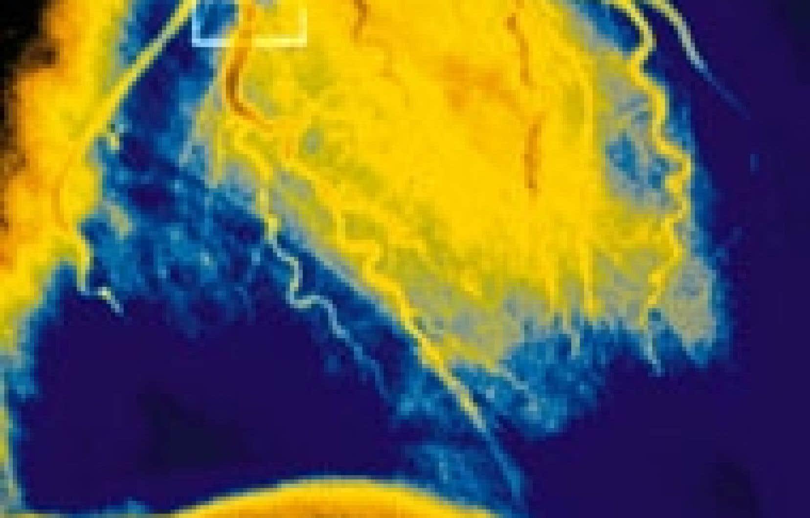 Angiographie d'un infarctus du myocarde. Source: Newscom
