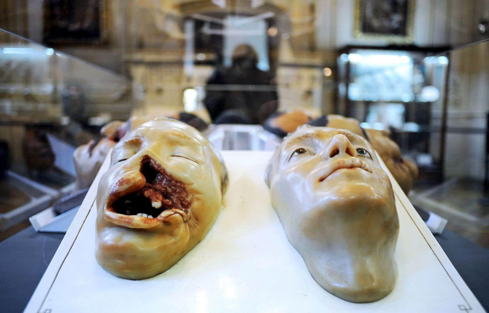 Les représentations moulées des «gueules cassées» de la Première Guerre mondiale, comme les milliers d'images figées prises en catimini durant le conflit, finiront par échapper à la censure et par circuler largement. Ci-dessus, deux de ces moulures macabres exposées au musée des Hospices civils de Lyon, en 2008.