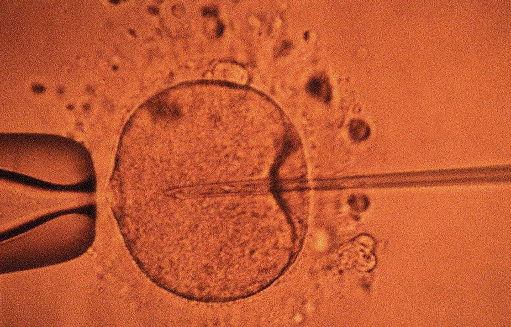 L'insémination avec donneur et la fécondation «in vitro» ont longtemps été réservées aux couples hétérosexuels.