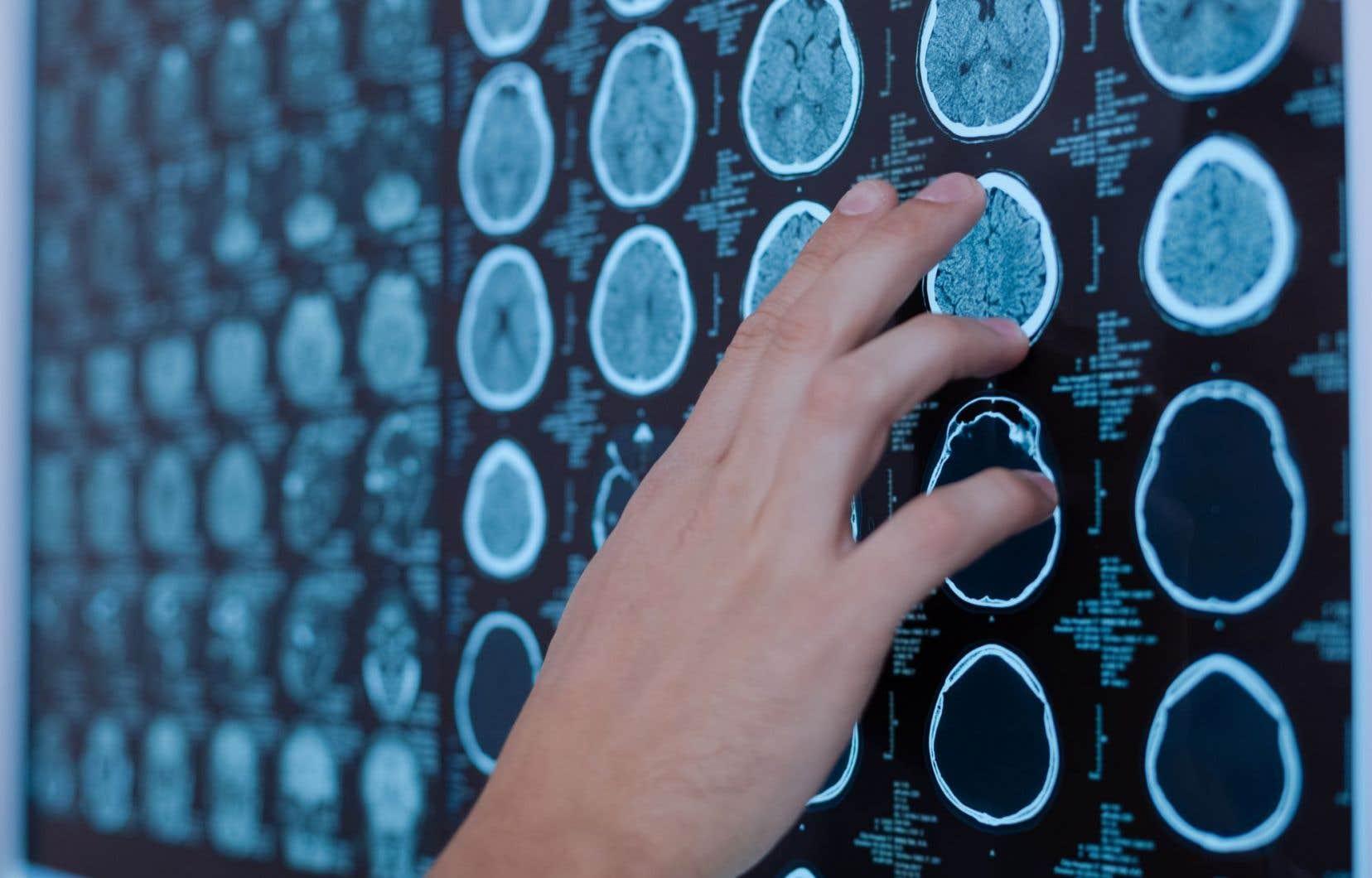 Dans 20 % des cas, les victimes de commotion n'affichent pas de symptômes visibles dans les 48 heures suivant un choc à la tête.
