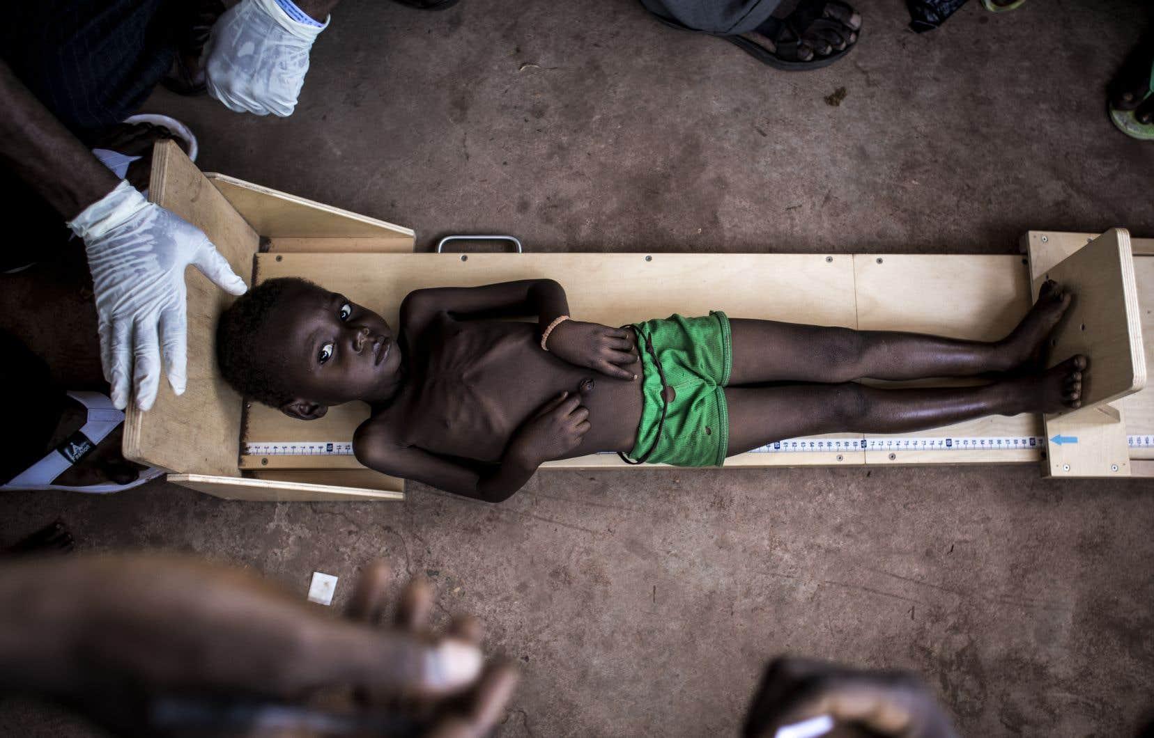 Un jeune congolais souffrant de malnutrition dans une clinique de Tshikapa, dans le Kasaï, en octobre dernier.