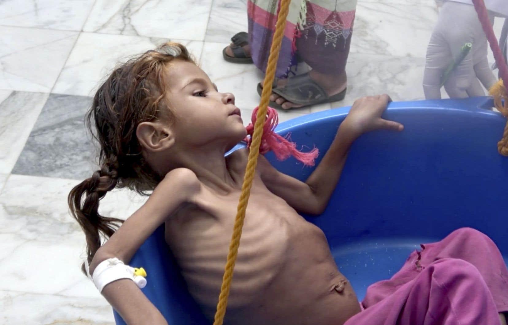 Sur vingt enfants de moins de cinq ans, au moins un souffre de malnutrition aiguë sévère à Hodeida, selon l'UNICEF.