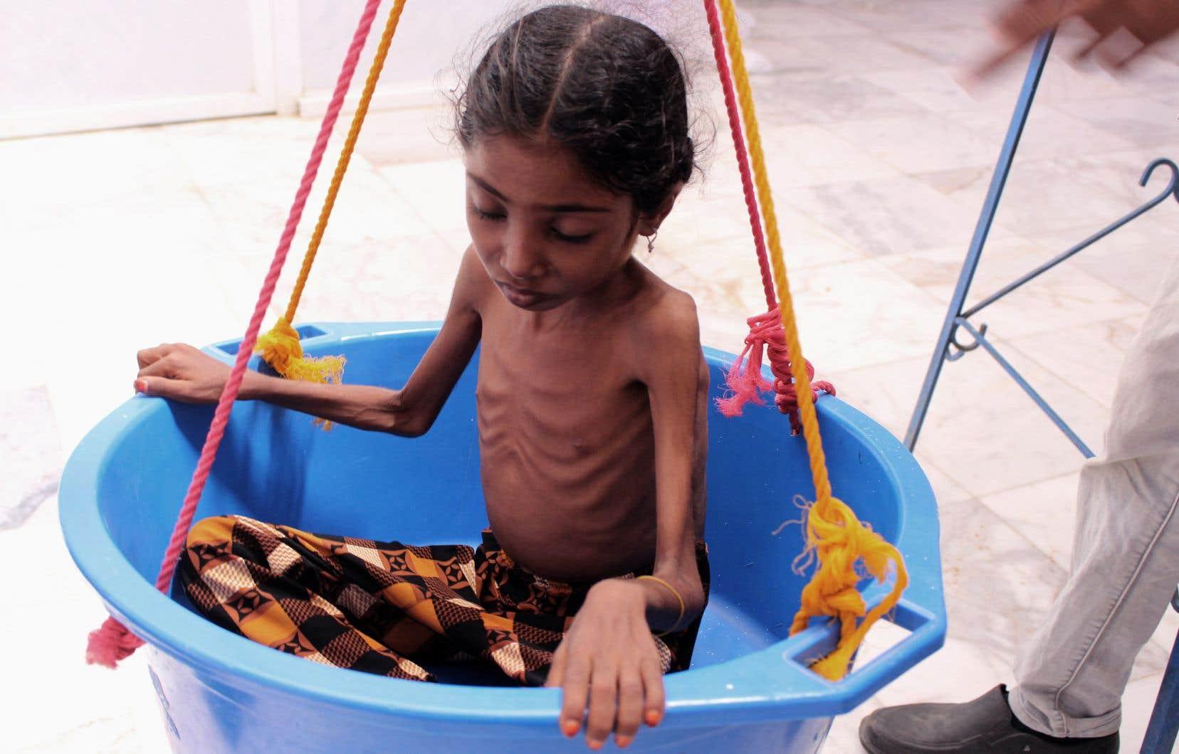 L'impact de la guerre au Yémen touche particulièrement les enfants, qui représentent «plus de la moitié» des 14millions de Yéménites souffrant d'insécurité alimentaire.