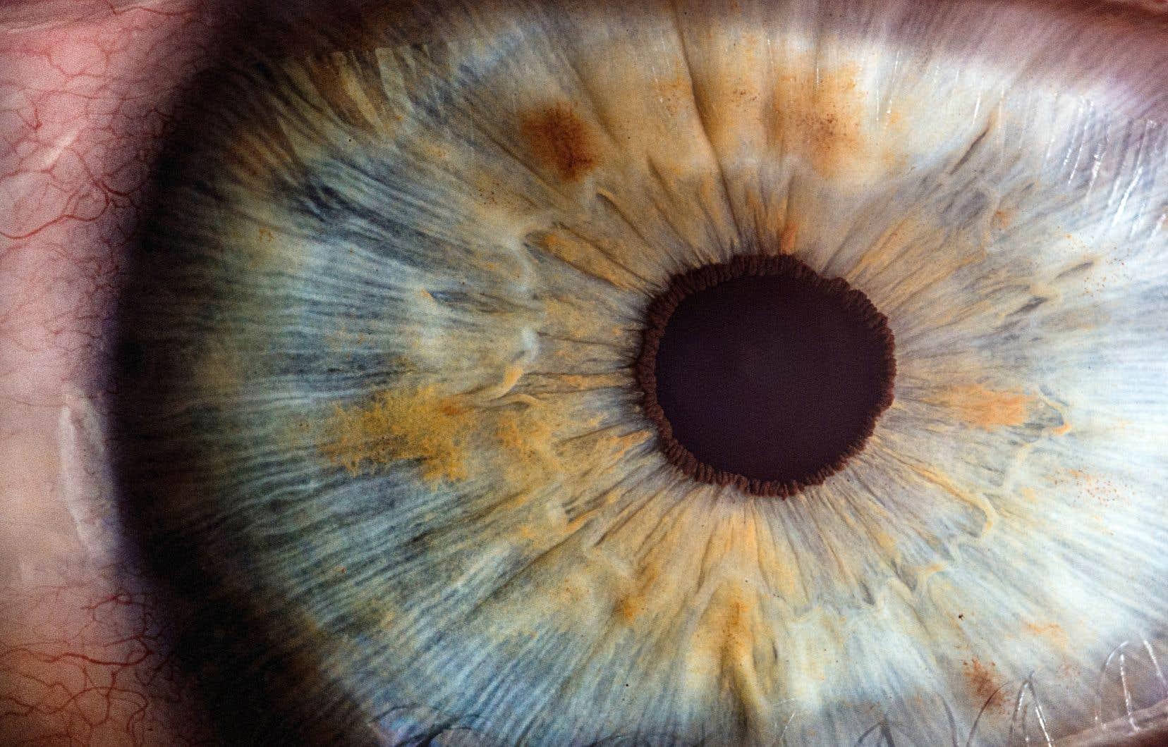 À partir d'une image de la rétine, les algorithmes détectent des micro-anévrismes, des exsudats et des nodules cotonneux associés à la maladie.