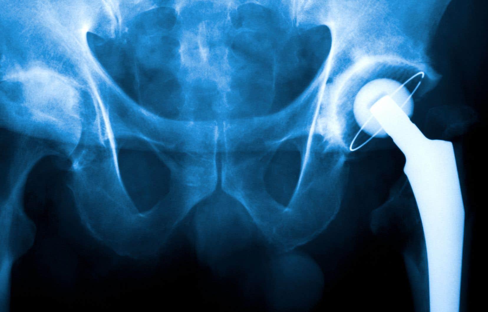 Censés aider les patients à survivre ou à améliorer leur qualité de vie, des appareils médicaux, comme des prothèses de hanche, ont mis en danger la vie de nombreuses personnes dans le monde.