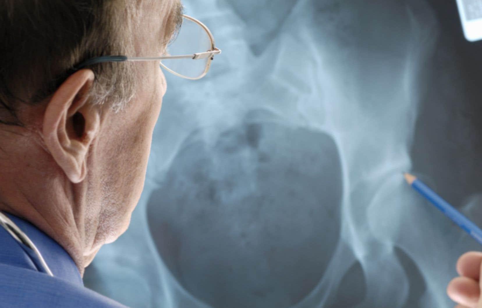L'ostéoporose est une maladie qui se caractérise par la diminution progressive de la solidité des os, et, par conséquent, un risque élevé de fracture.