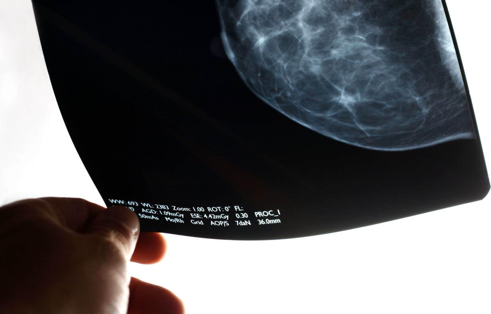 Le programme québécois de dépistage du cancer du sein offre aux femmes de 50 à 69 ans la possibilité de passer une mammographie tous les deux ans.