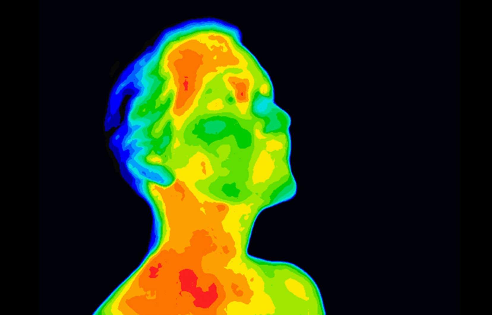 La température corporelle des humains a baissé grâce à l'amélioration de leurs conditions de vie, avance une équipe de chercheurs.
