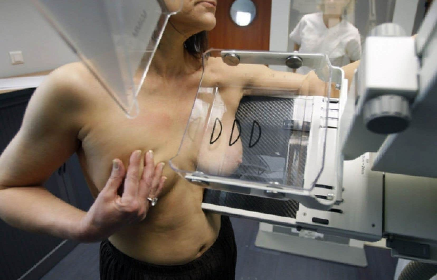 Mammographie<br />