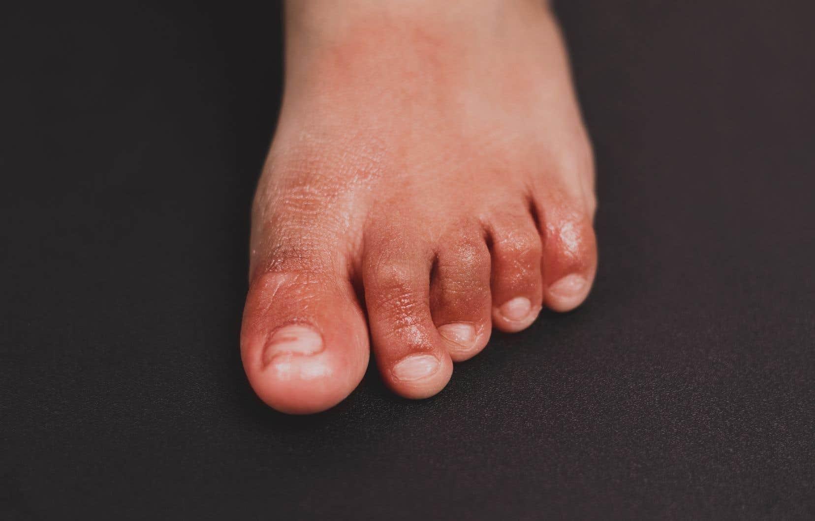Les études menées jusqu'ici démontrent que plusieurs patients atteints «d'orteils COVID-19» sont «asymptomatiques», selon les critères retenus pour le dépistage des cas.