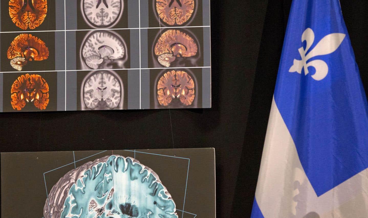 Un algorithme développé à McGill permet de dépister plus tôt la maladie d'Alzheimer